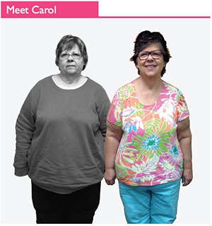 weight loss success stories - Carol